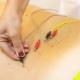 Tratamiento de acupuntura en Marbella