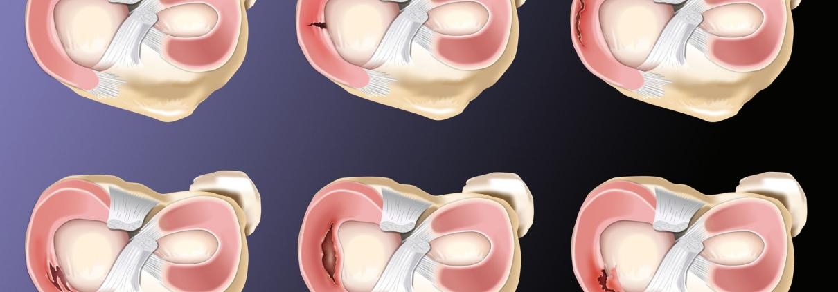 Meniscopatia - Lesiones Meniscales en Corporis Fisioterapia